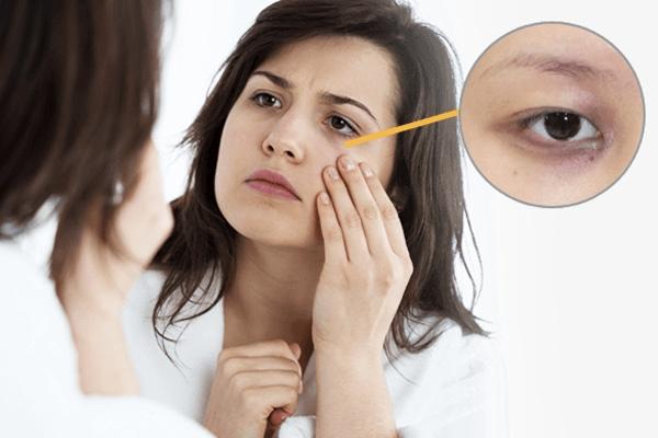Các nguyên nhân khiến mắt bị thâm quầng