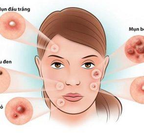 Phân biệt #8 loại mụn trên mặt, [nguyên nhân, cách điều trị và lời khuyên] 2